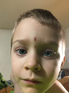 My son's face with the result of his shovel encounter.
